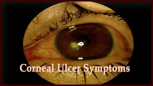 Corneal Ulcer Symptoms