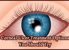 Corneal Ulcer Treatment Options You Should Try