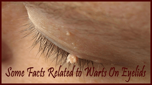 Some Facts Related to Warts On Eyelids