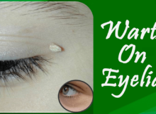 Warts On Eyelid