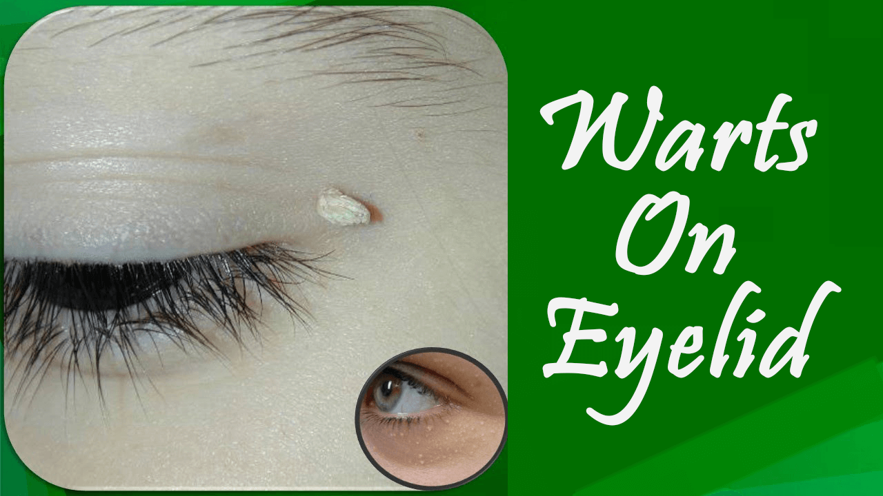 Warts On Eyelid: Know Its Causes, Symptoms, Facts, Treatments & More